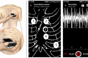 Aplicație mobilă pentru detectarea bolilor cardiace, dezvoltată în Coreea de Sud